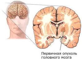 Каковы признаки опухоли головного мозга?