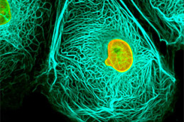 Ученый нашел способ вызвать голодание раковых клеток