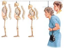 Современный подход к терапии остеопороза
