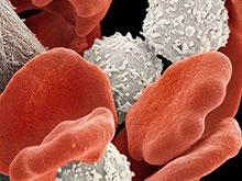 Ученые исследовали препарат, подходящий для лечения стойкого рака легких