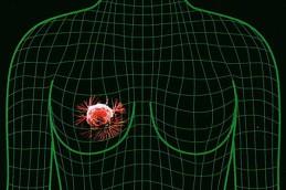 Как вовремя распознать рак груди