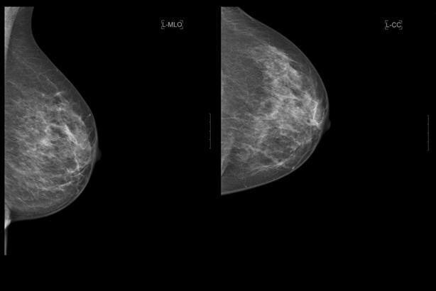 Маммография северный