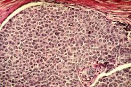 Влияние перинатальных факторов на риск развития рака груди