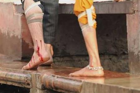 Больные раком индийцы исцеляются, пуская себе кровь