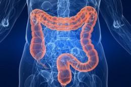 У витамина В3 обнаружили способность защищать от рака толстого кишечника
