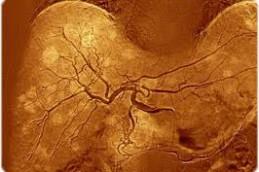 Ученый нашел способ вызвать голодание раковых клеток и остановить рост опухолей