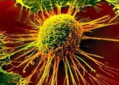 Обнаружены раковые клетки-долгожители