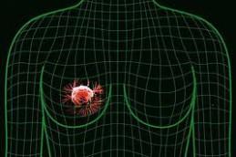 Исследователи приблизились к истинному источнику рака груди