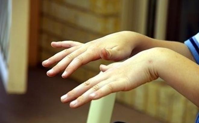 Что делать, если дрожат руки