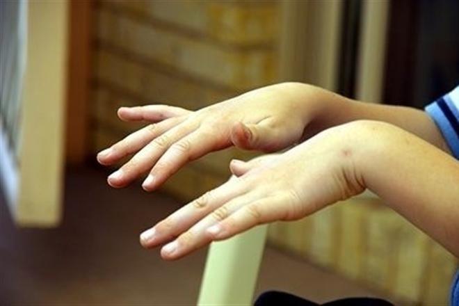 Тремор рук как лечить при алкоголизме