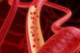Холестерин помогает распространению рака