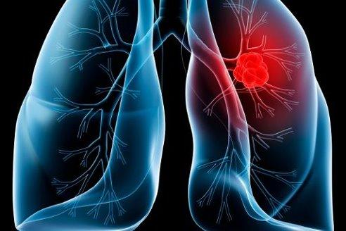 Повышенный риск рака груди означает большую вероятность развития и рака легких