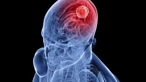 Рак мозга:важно знать
