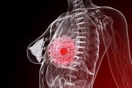 Как распознать рак