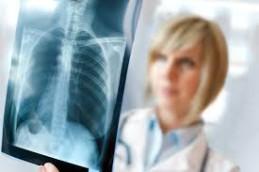 Один из симптомов рака легких — постоянный кашель.