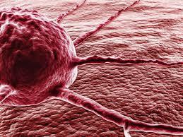 Злокачественные и онкологические образования