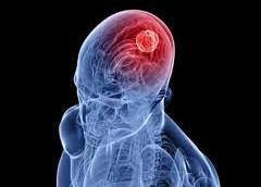 Рак мозг. Симптомы