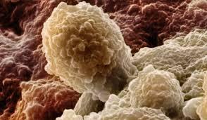 Рак предскажет анализ днк