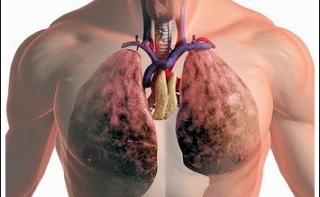 Риск развития рака легких