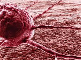 Диагностика рака по снимку