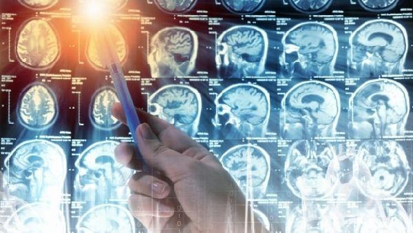 В раке головного мозга виновны мутации