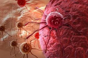 Почему растет опухоль?