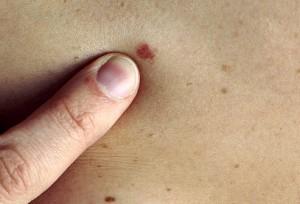 Факторы, определяющие выживаемость больных диссеминированной BRAF-мутированной меланомой, получающих сочетанную терапию дабрафенибом и траметинибом