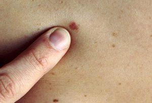 Эти популярные препараты могут защитить от рака кожи