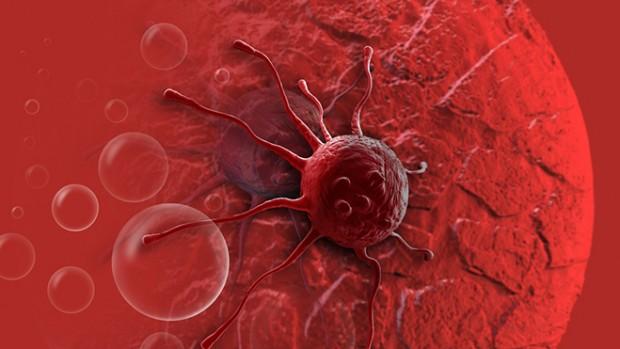 Образ жизни человека влияет на вероятность возникновения раковых заболеваний
