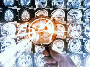 Смертельную детскую опухоль мозга попробуют вылечить новой молекулой