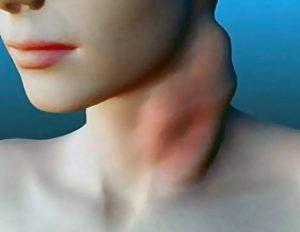 Перенесенный лимфогранулематоз как фактор отдаленного риска развития новых самостоятельных онкологических заболеваний