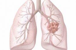 Спонтанный отказ от курения оказался симптомом рака легких