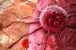 Появление рака у человека могут вызвать бытовые привычки