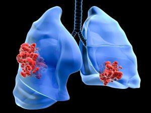 FDA одобрило широкое применение Зикадиа для лечения немелкоклеточного рака легких