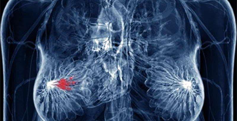 Lancet Oncology: окончательные результаты общей выживаемости больных HER2-позитивным метастатическим РМЖ, получавших трастузумаб эмтанзин в исследовании TH3RESA
