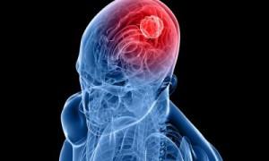 Профилактика рака головного мозга
