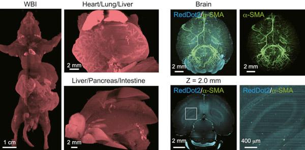 Японские ученые впервые увидели, как метастазы распространяются по телу