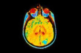 Детские опухоли мозга разделили на 10 разных болезней