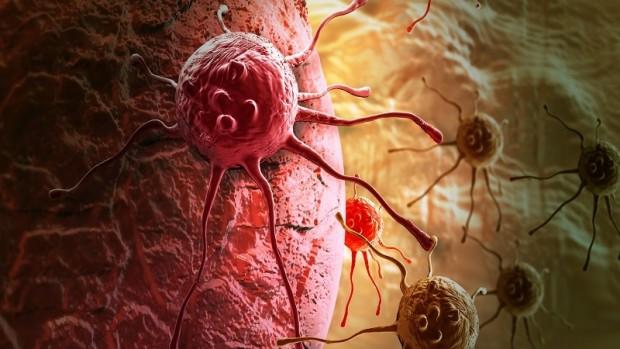 Новая техника визуализации позволит предсказать распространение рака груди на легкие