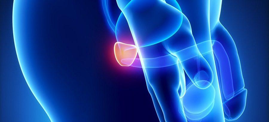 Сравнение кабазитаксела с доцетакселом в первой линии терапии больных метастатическим кастрационно-резистентным раком предстательной железы