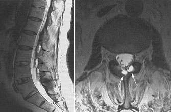 Анкилозирующий спондилоартрит (болезнь Бехтерева) | Онкология в России