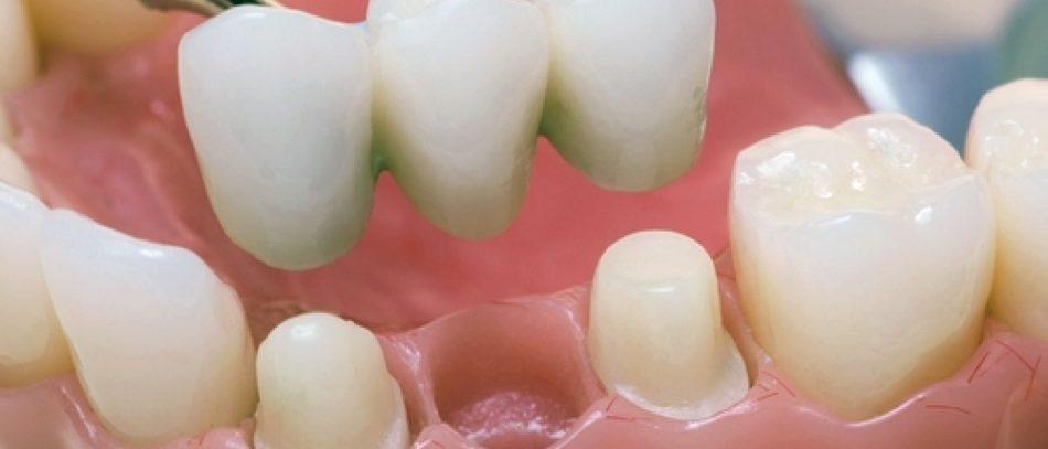 Протезирование зубов коронками — на что обратить внимание?