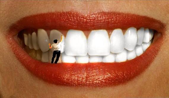 Почему отбеливание зубов стало таким популярным