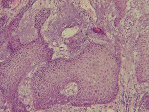 Онкология. Рак слизистой полости рта
