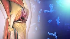 Остеоартроз коленного сустава. Этиология, симптомы и виды лечения