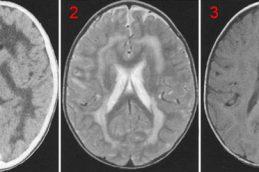 Симптомы, диагностика и лечение болезни Краббе