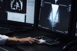 Рак груди: кто в группе риска?