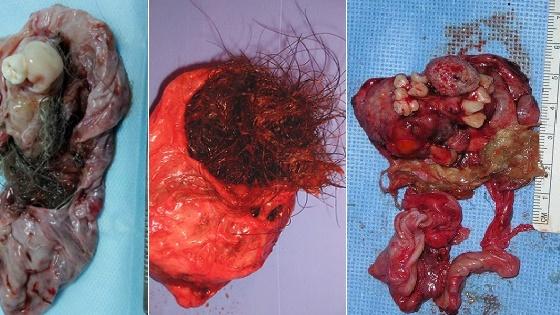 Тератома яичника: виды, чем опасна, симптомы, лечение, осложнения