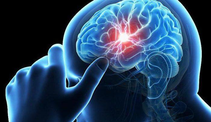 Ангиоэнцефалопатия головного мозга – что это такое? Симптомы, лечение и прогноз