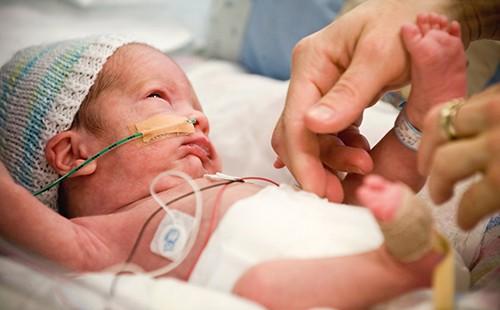 Недоношенные дети, самые маленькие, но зато самые сильные
